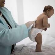 Đích thị Virus Zika gây ra tật đầu nhỏ
